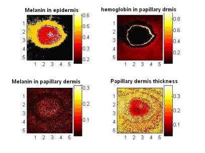 parametric maps of skin lesion