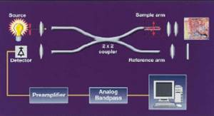 Optical Coherence Tomography principle