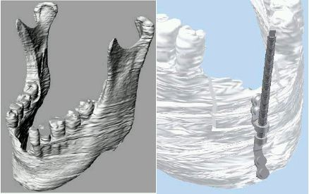 Modelling_of_an_Artificial_Jaw_based_on_the_Original_one