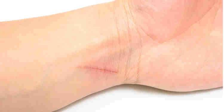 cut injury