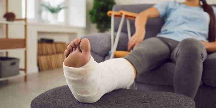 plastered leg
